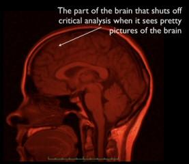 Quinn_brainshutoff